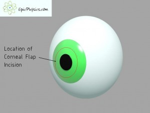 how laser eye surgery works 1 - location of corneal flap decided